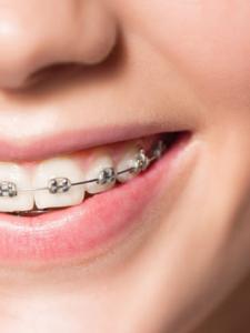ортодонтия сертификат и повышение квалификации