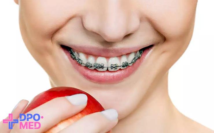 Дистанционные курсы для ортодонтов